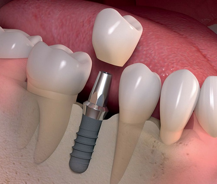 implantes-dentales-valencia-clinica-dental-freitas