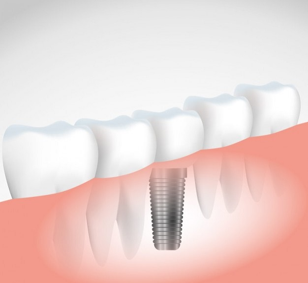 implantes dentales sin cirugía-clinica dental valencia-clinica dental freitas