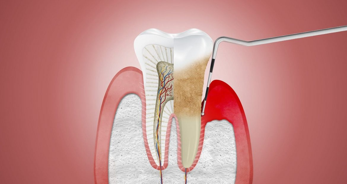 periodontitis-clinica dental freitas-clinica dental valencia