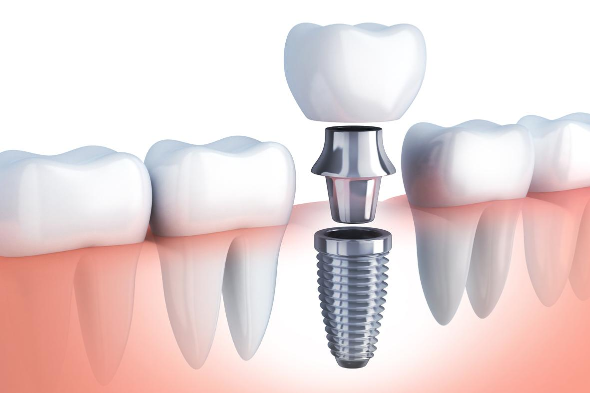 implantes-dentales-clinica dental valencia-clinica dental freitas