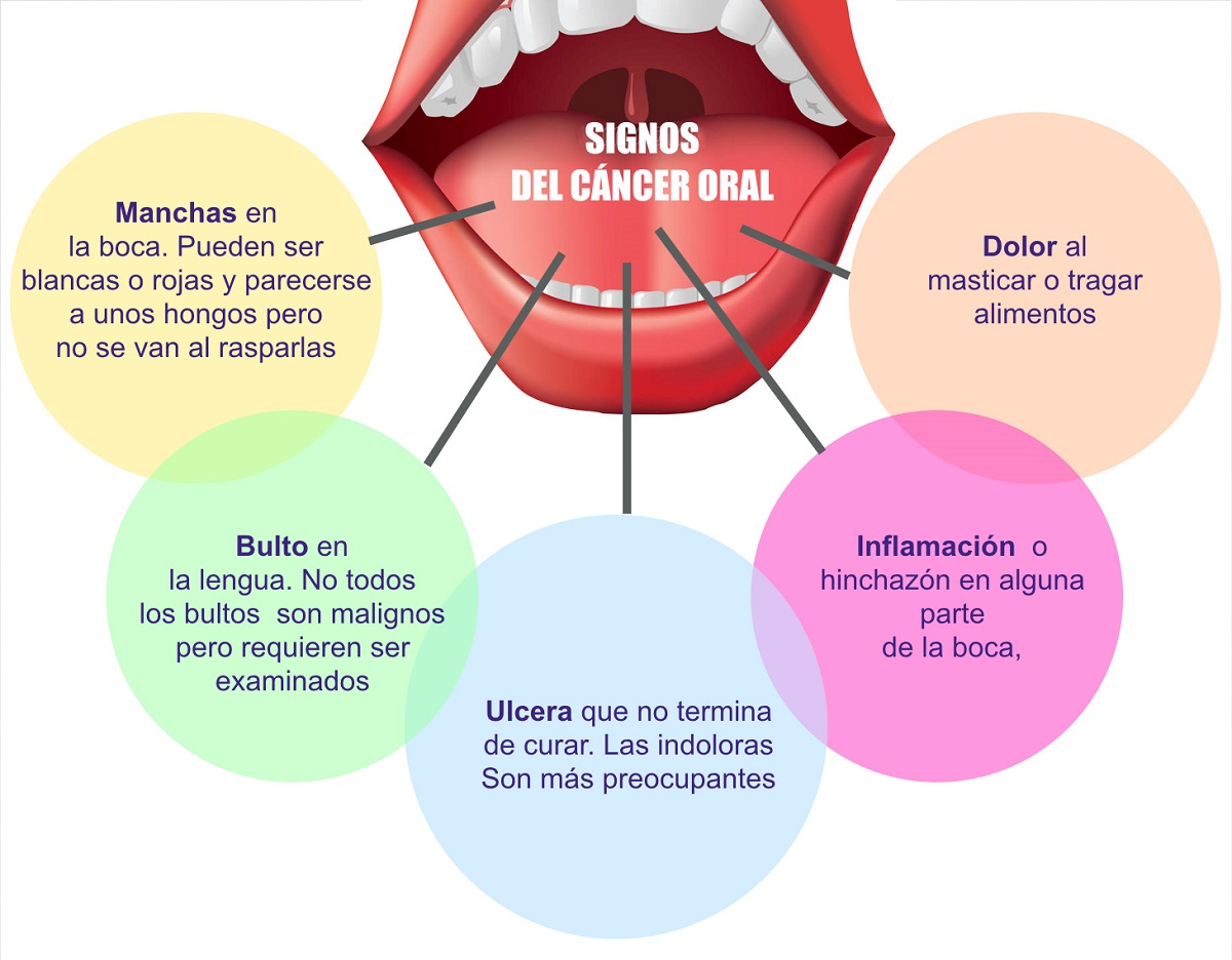 prevencion del cancer oral-clinica-dental-freitas-clinica-dental-valencia-dentista-valencia